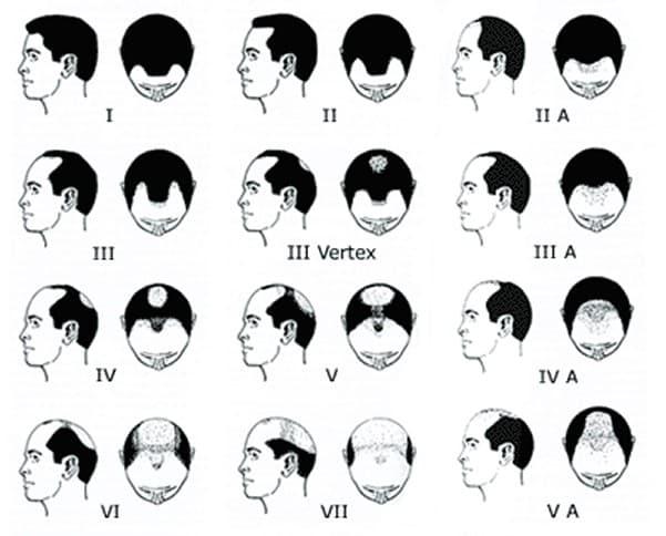 Norwood hair transplant scale